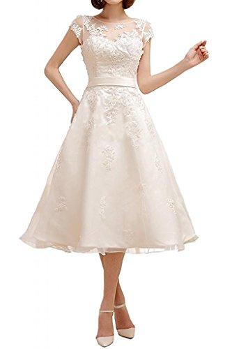 YASIOU Hochzeitskleid Standesamt Damen A Linie Kurz Tüll Spitze Weiß Vintage Durchsichtig Hochgeschlossen Knielang...